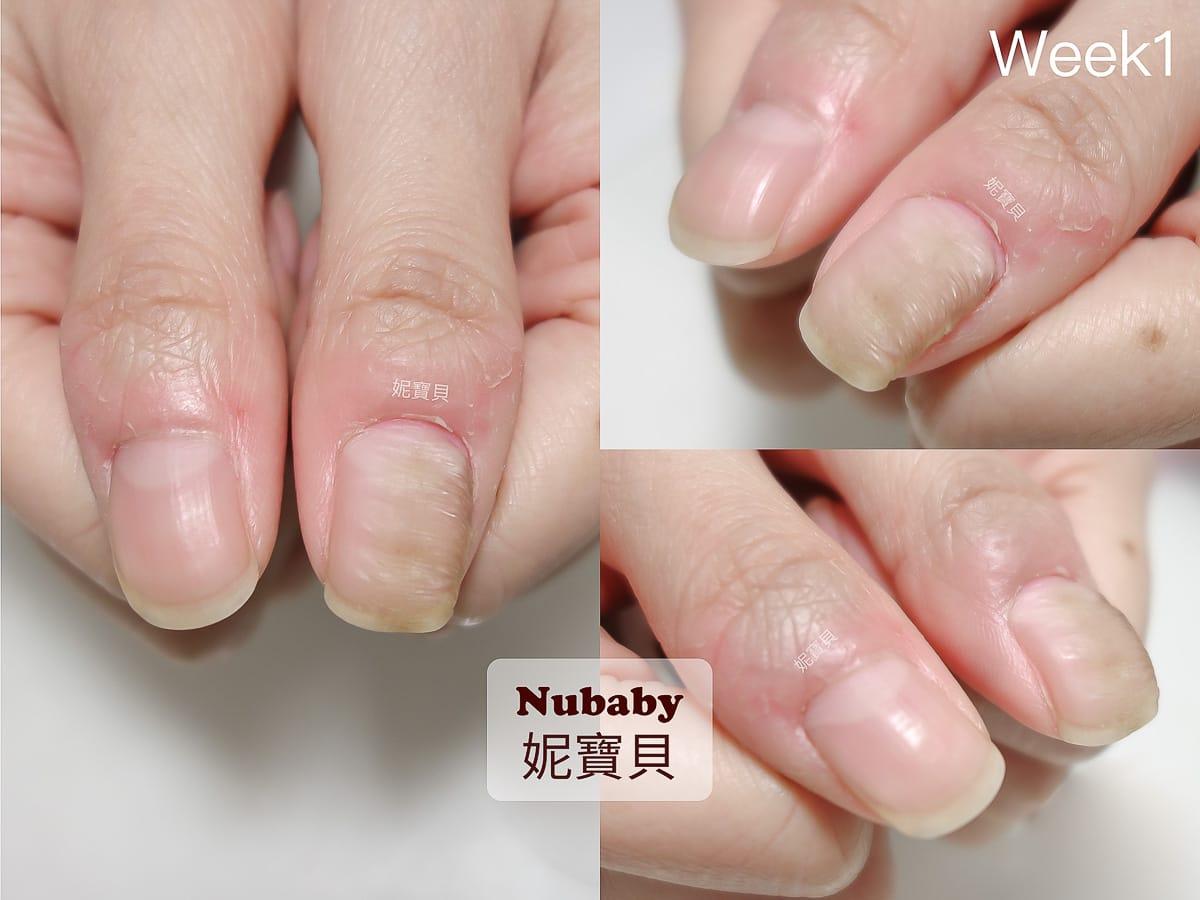 拇指指甲-波浪 變形 凹凸 橫豎紋路 黑甲 指甲矯正