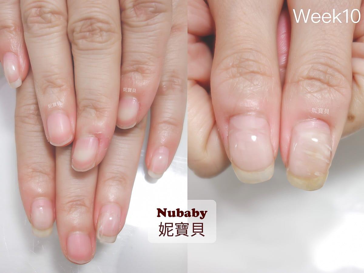 指甲矯正過程-波浪 變形 凹凸 橫豎紋路 黑甲 指甲矯正