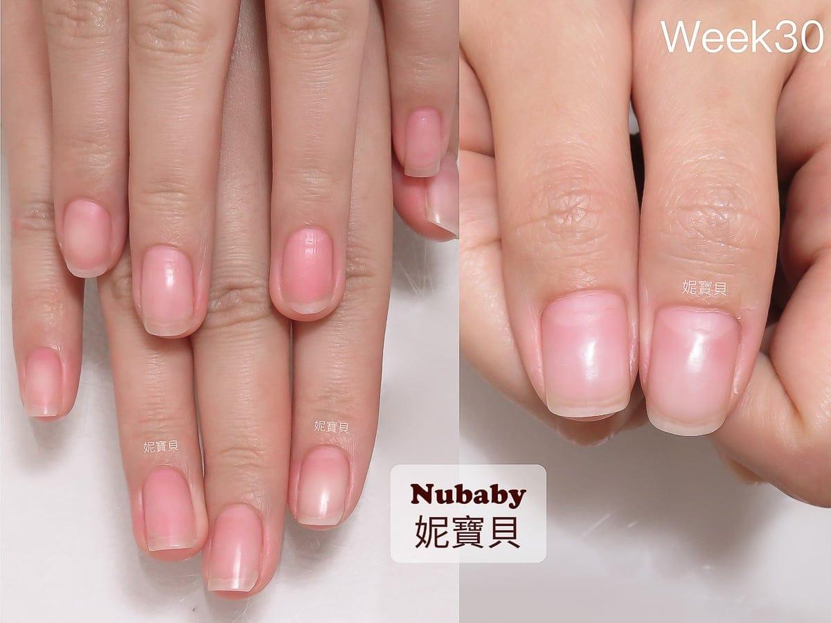 甲床過短 摳咬指甲 矯正後指肉變長 指緣變健康