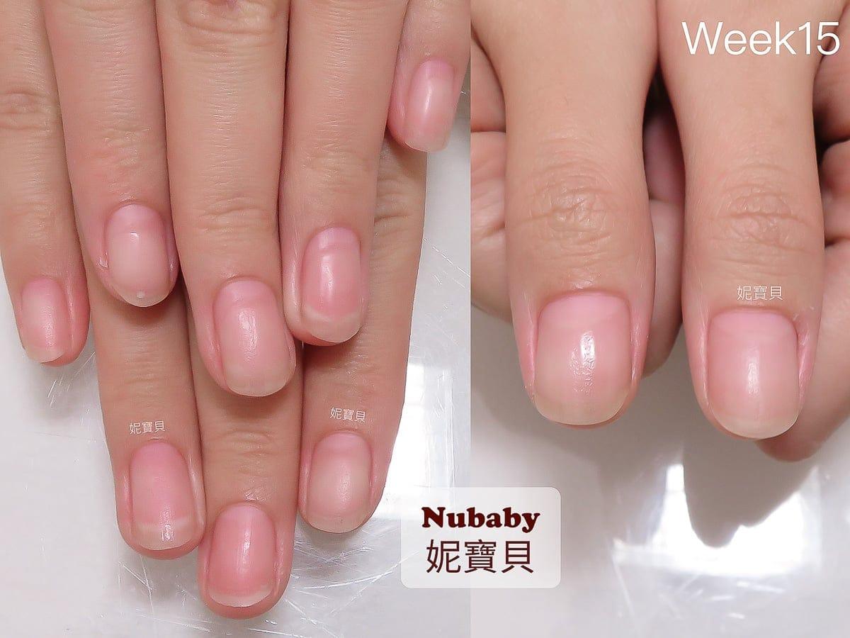 甲床短 摳咬指甲 矯正後指肉變長 指緣變健康