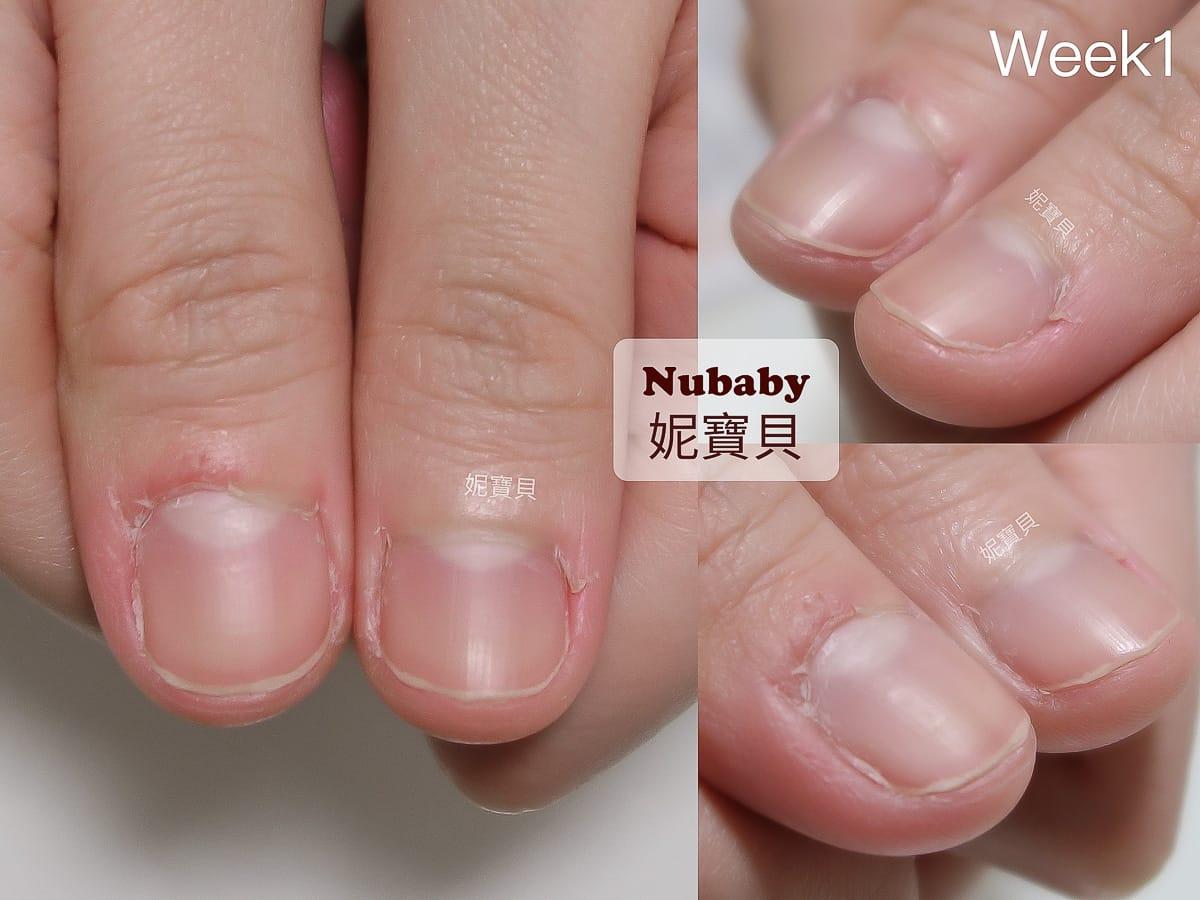 拯救摳咬指甲-指緣脫皮紅腫 手指發炎腫脹