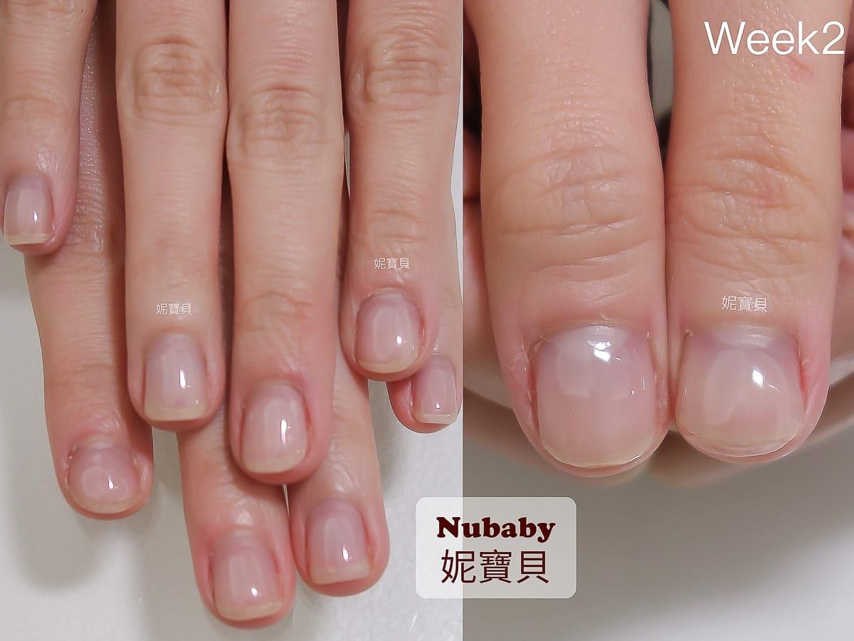 拯救指甲-摳咬致指緣脫皮紅腫 手指發炎腫脹
