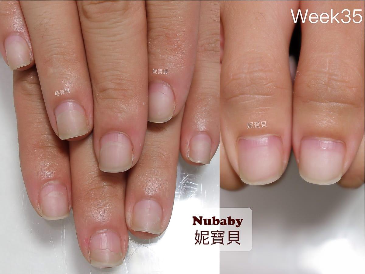 甲床變長 男生摳咬指甲變形 咬甲後遺症的處理