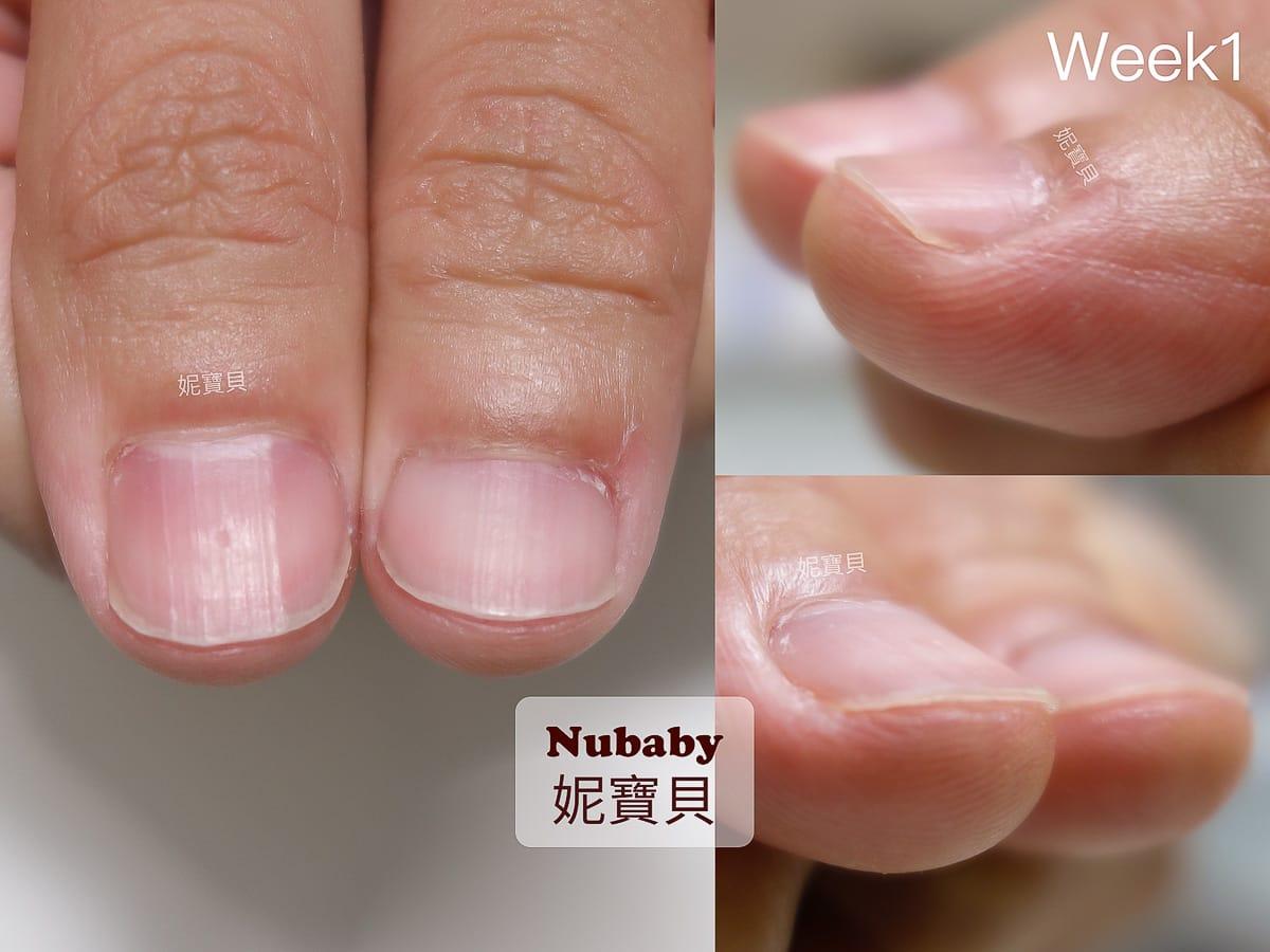 指肉變長 男生摳咬指甲變形 咬甲後遺症的處理
