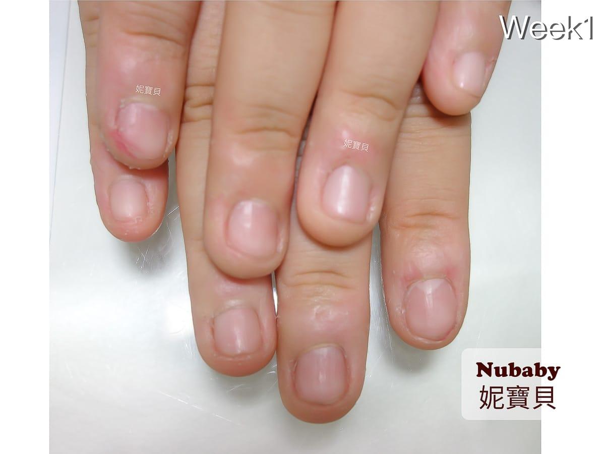 指甲咬過短-咬甲矯正 指甲肉刺脫皮 指緣紅腫發炎
