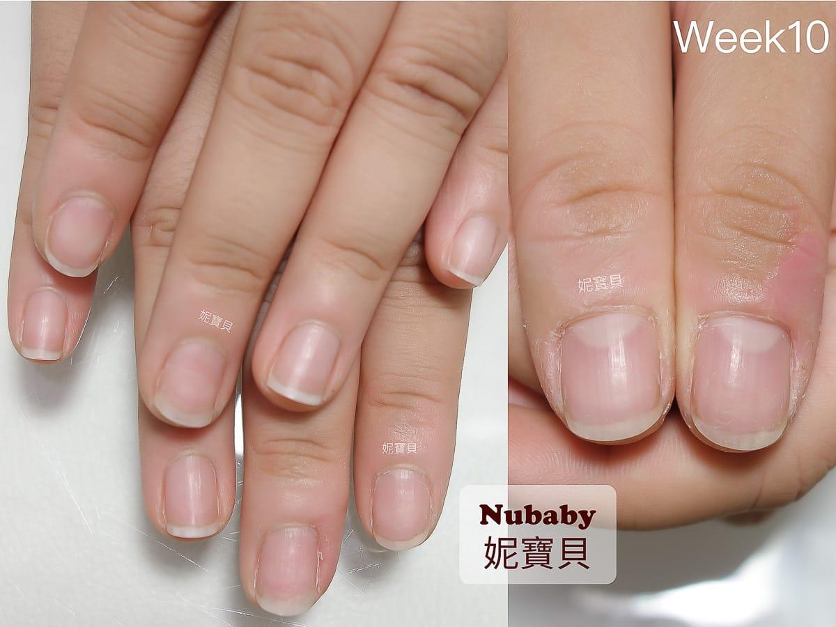 指甲被咬過短-咬甲矯正 指甲肉刺脫皮 指緣紅腫發炎