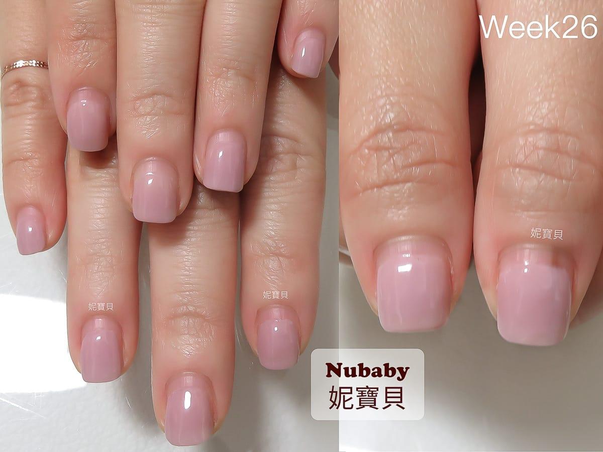 指甲有黑線 指尖腫脹 指緣脫皮 指肉短-甲床生長過程