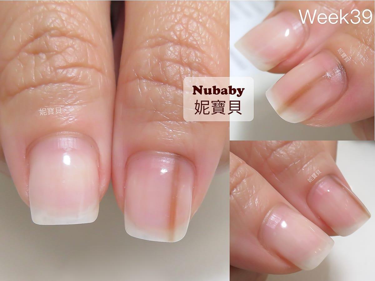 指甲黑線 指尖腫脹 指緣脫皮 指肉短-甲床生長過程