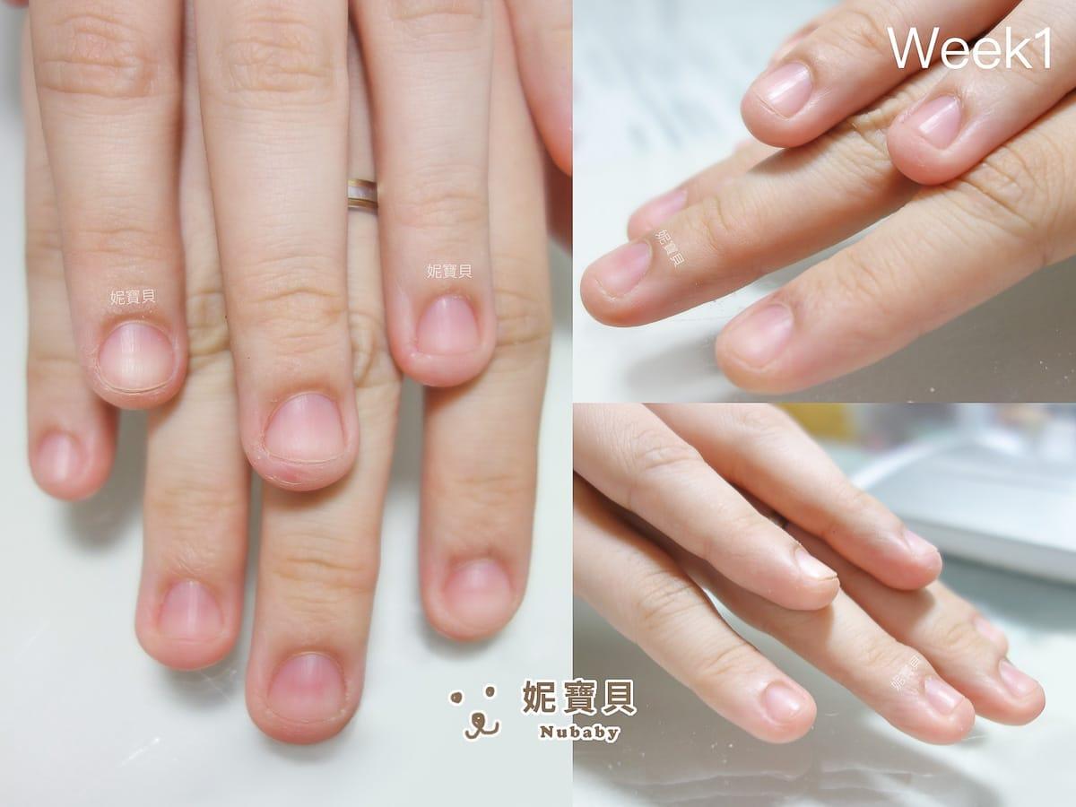 指緣紅腫 甲床外露 摳咬問題指甲矯正