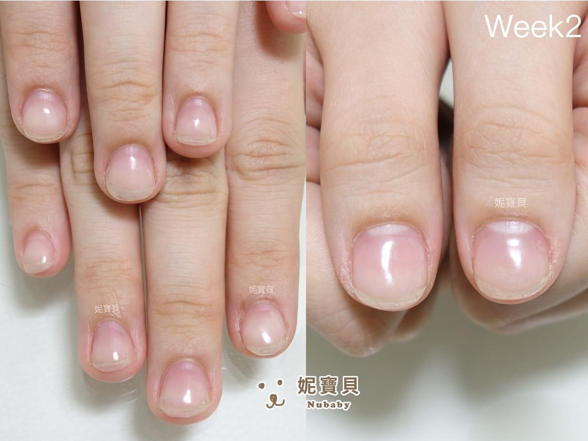 指緣腫 甲床外露 摳咬問題指甲矯正