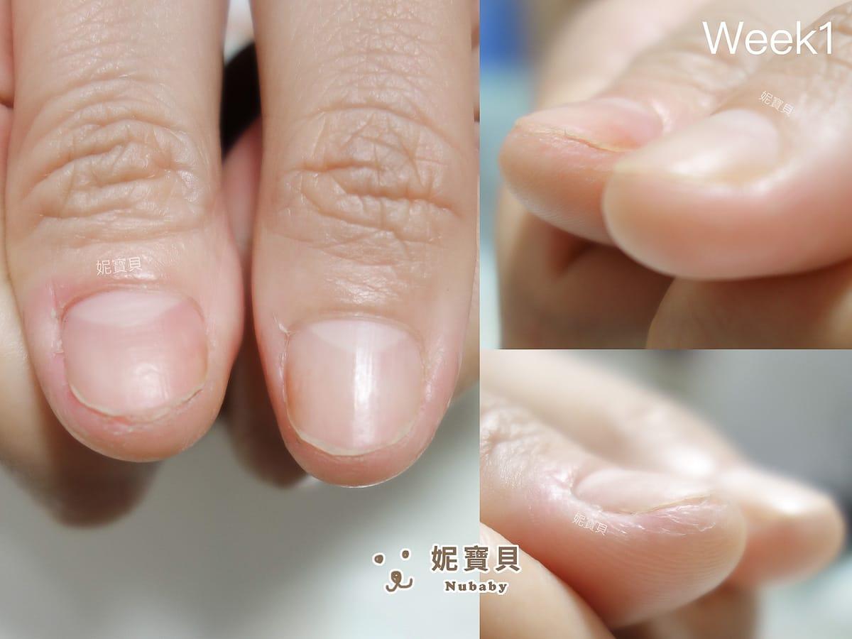 咬甲後 甲床過短又飛甲 保濕不足的摳咬指甲矯正