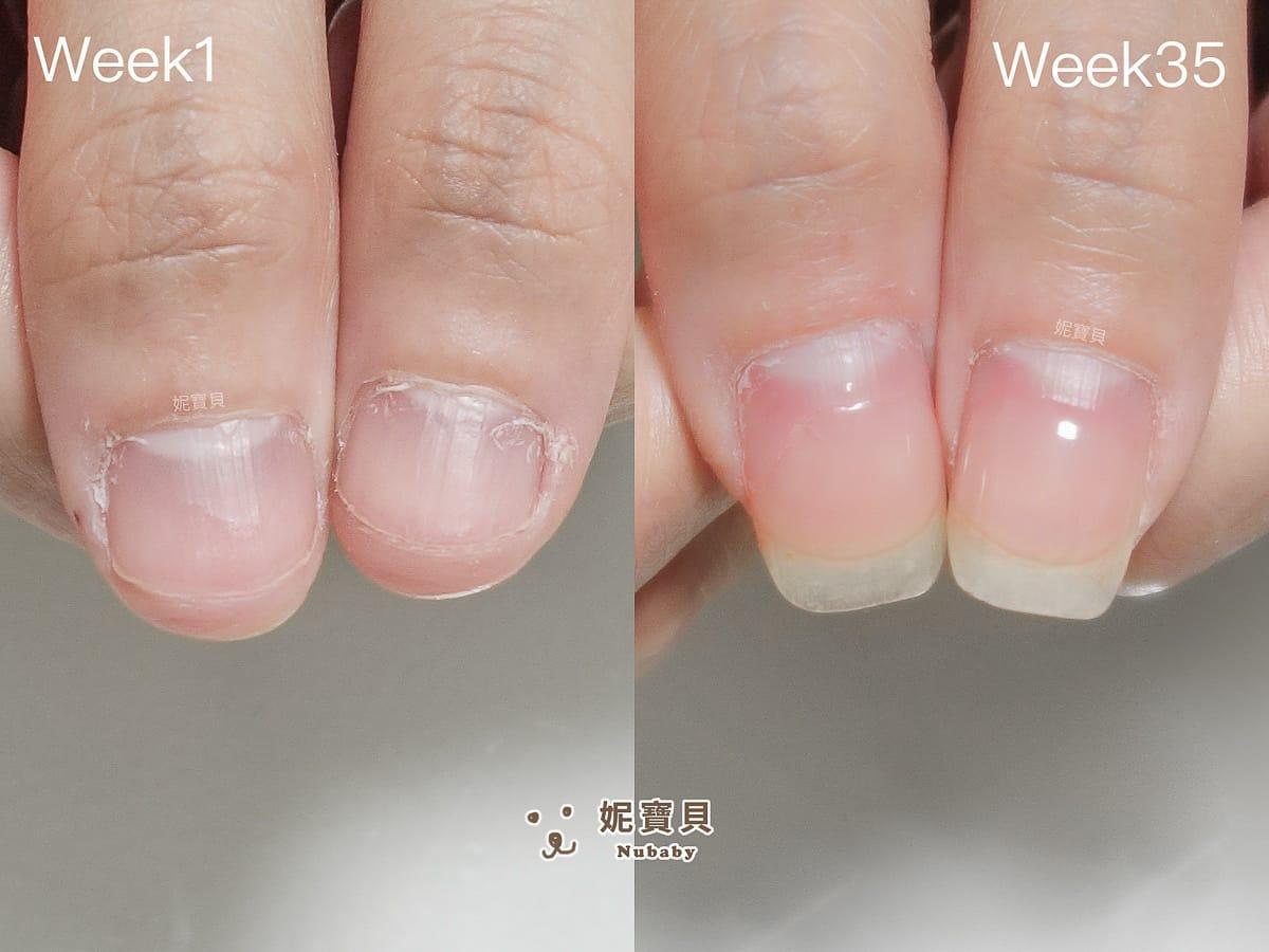 指甲問題-牙醫助理摳咬指甲矯正