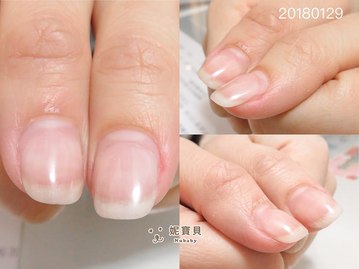 指甲問題-傷到指甲的花店工作者