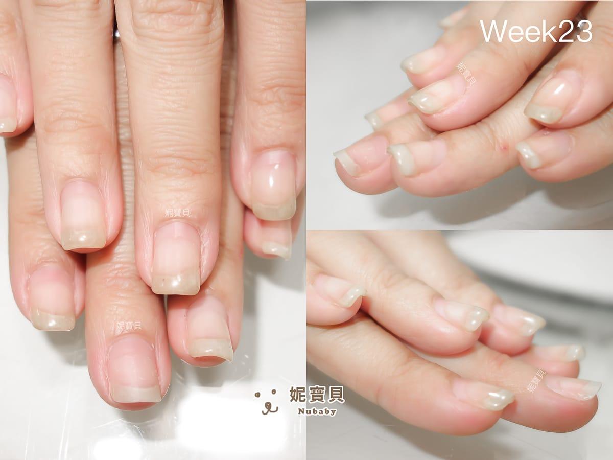 咬指甲 超短指甲矯正後做法式指甲