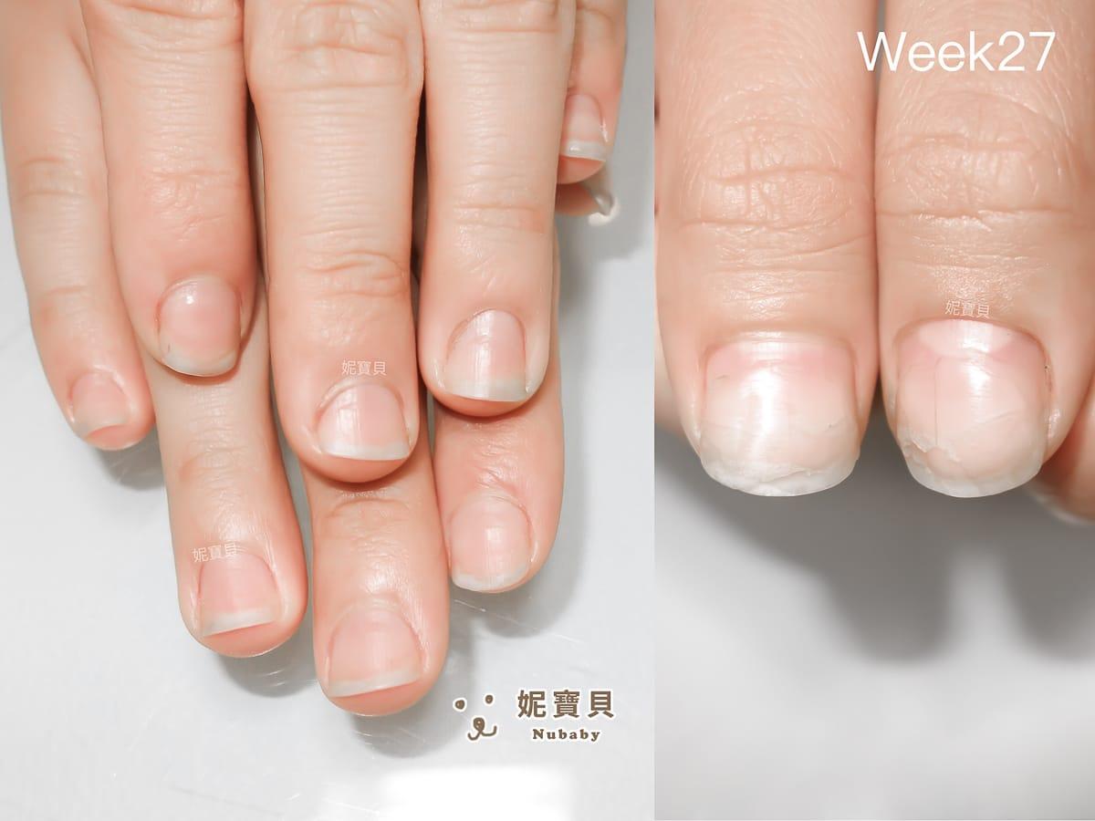矯正型凝膠指甲 餐飲業的摳咬指甲矯正