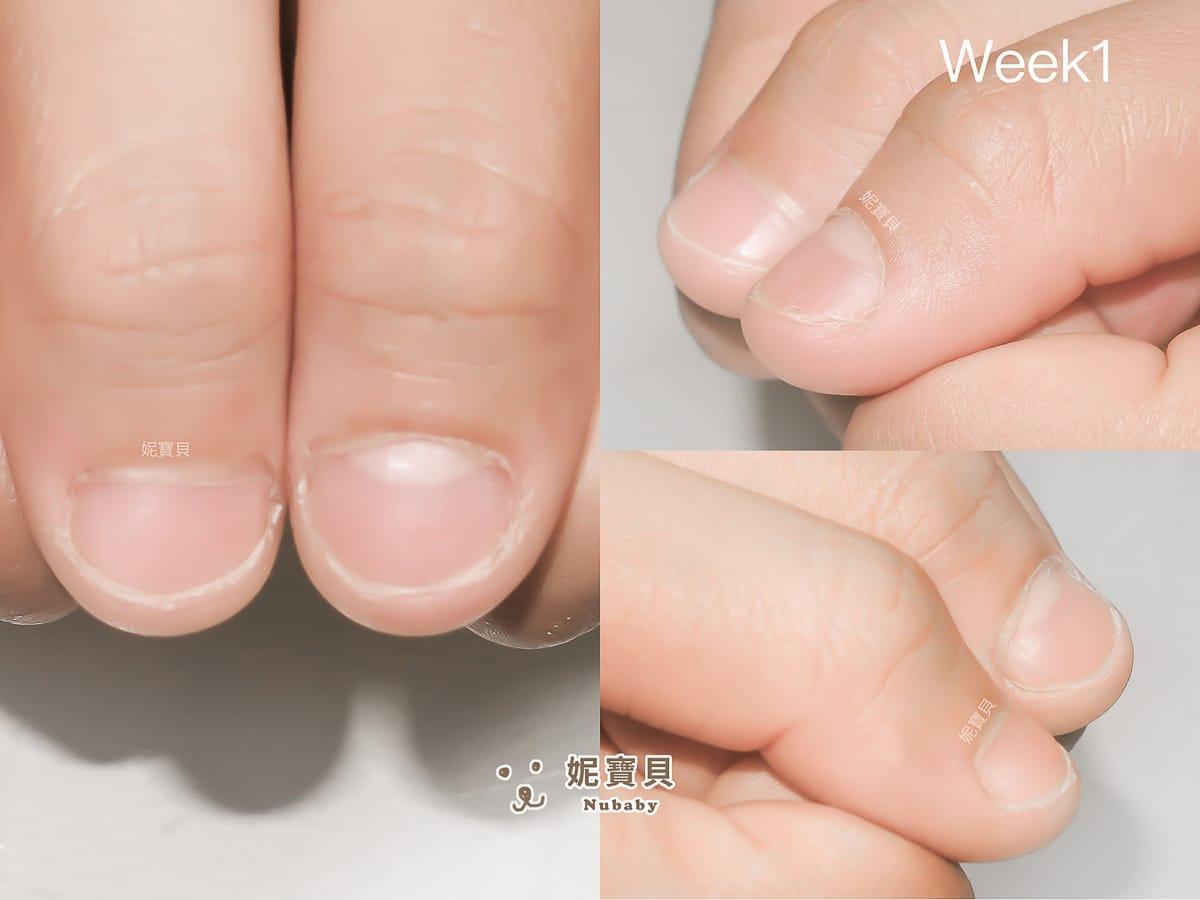 工作長期碰水 餐飲業的摳咬指甲矯正
