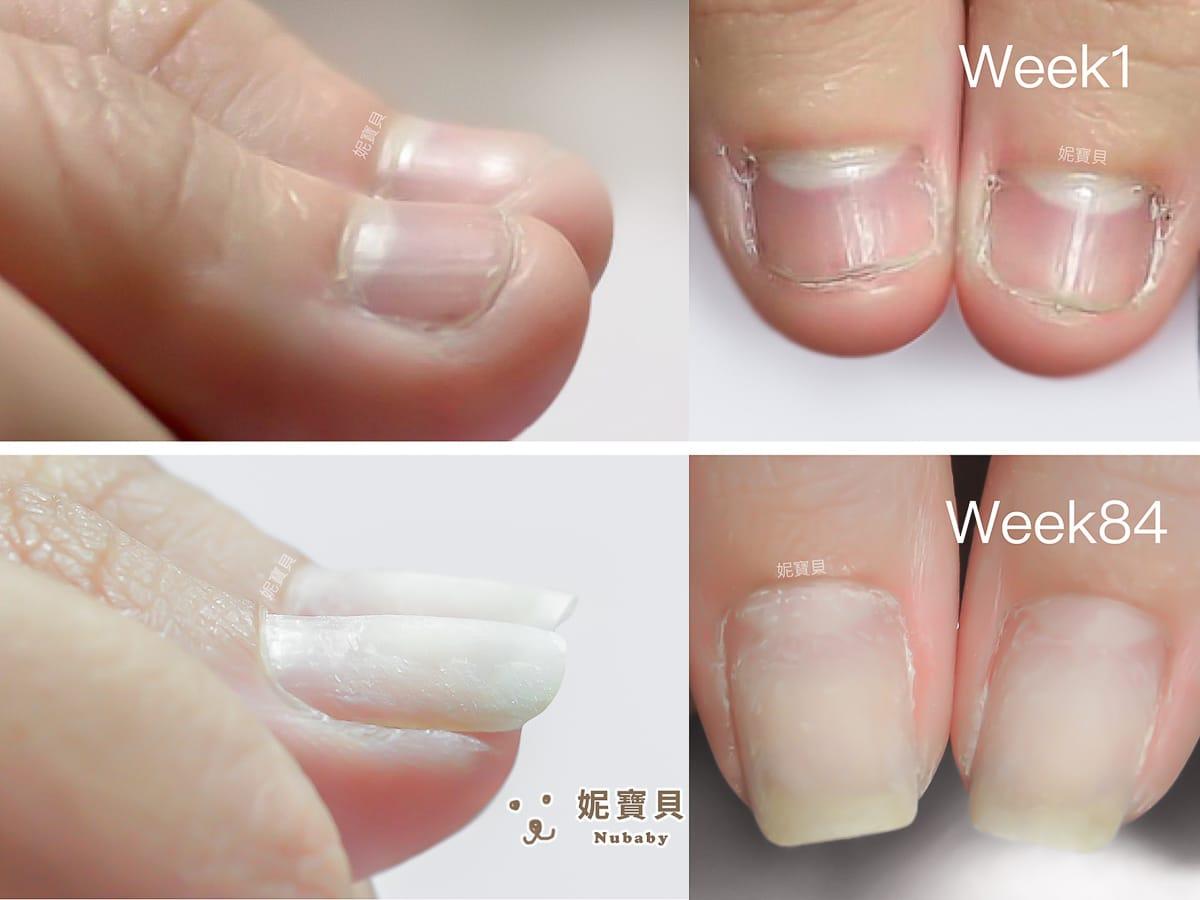 指甲問題 咬甲 摳甲 矯正成功的紅腫手指指甲
