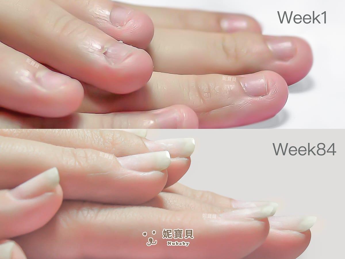 咬甲 摳甲 矯正成功的紅腫手指指甲