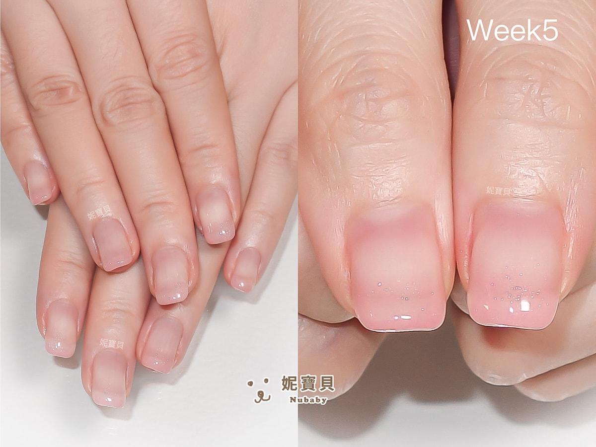 摳甲撕甲 導致指緣乾燥 銀行員指甲矯正 璀璨凝膠維持