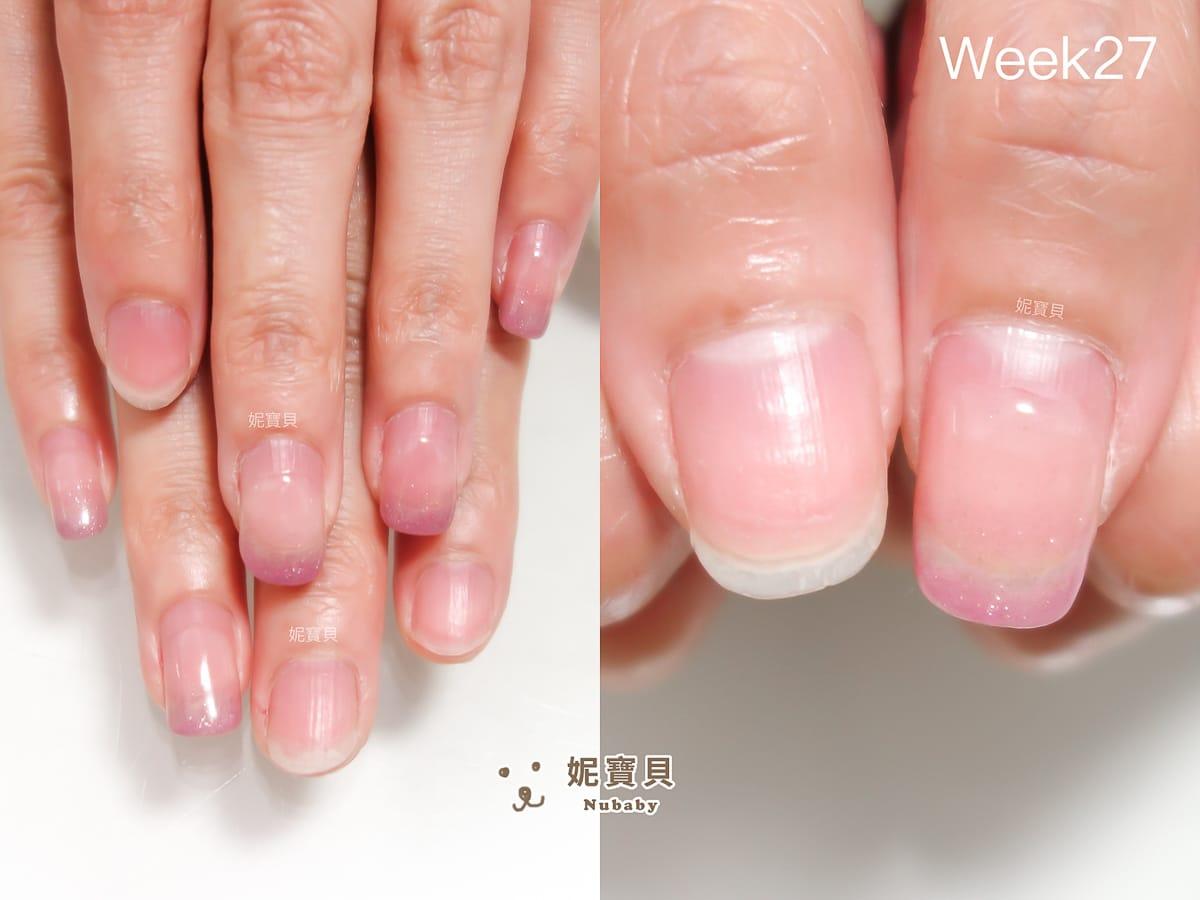 撕皮 指緣不健康使得矯正進度進退兩難