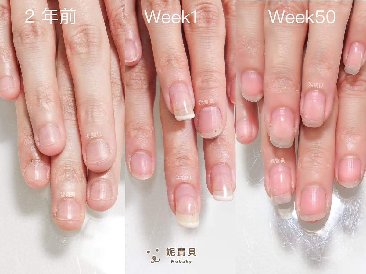 撕手皮 指緣不健康使得矯正進度進退兩難