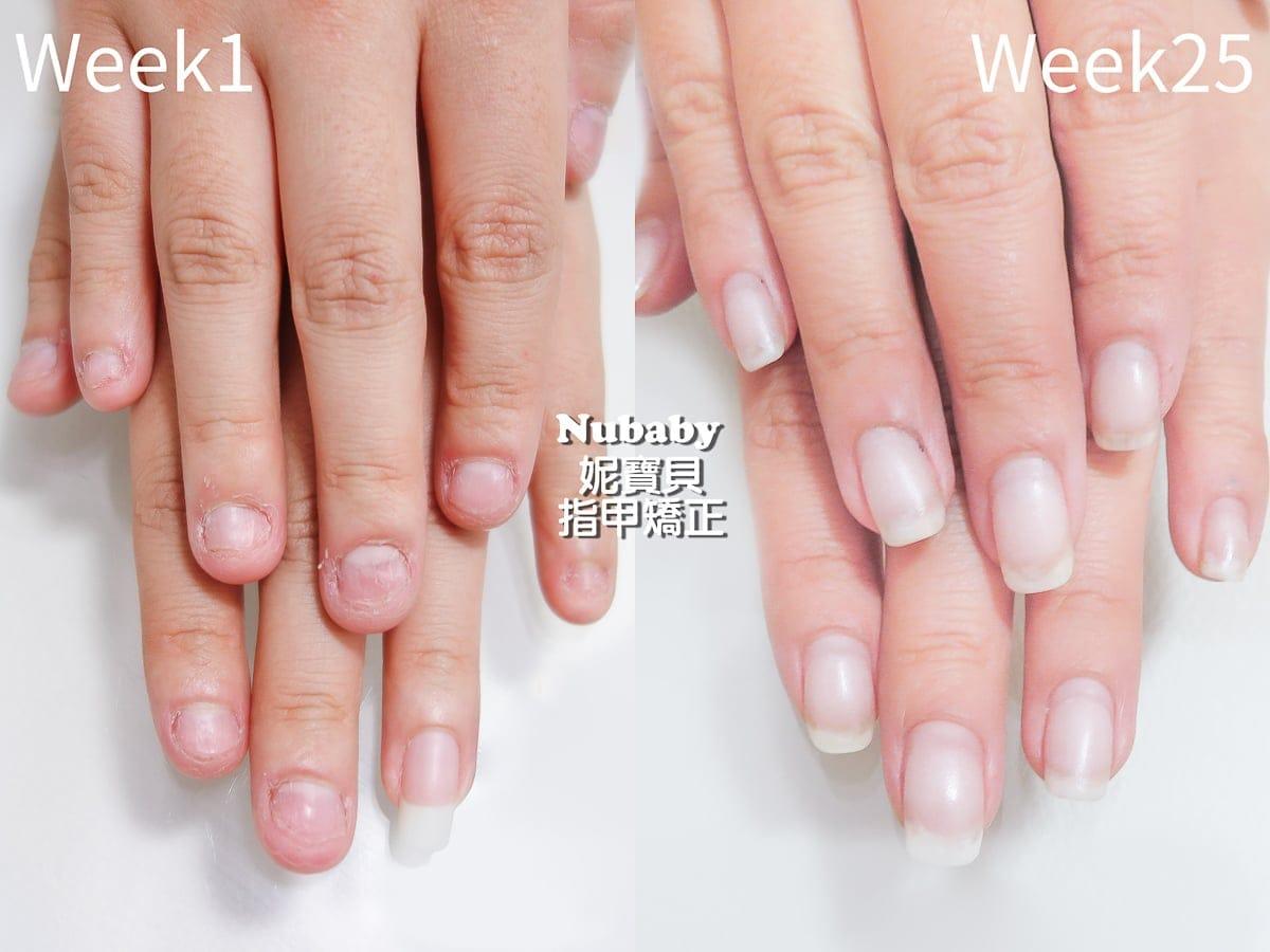 咬指甲 水晶指甲 是什麼?水晶指甲的成分用途 修補卸除