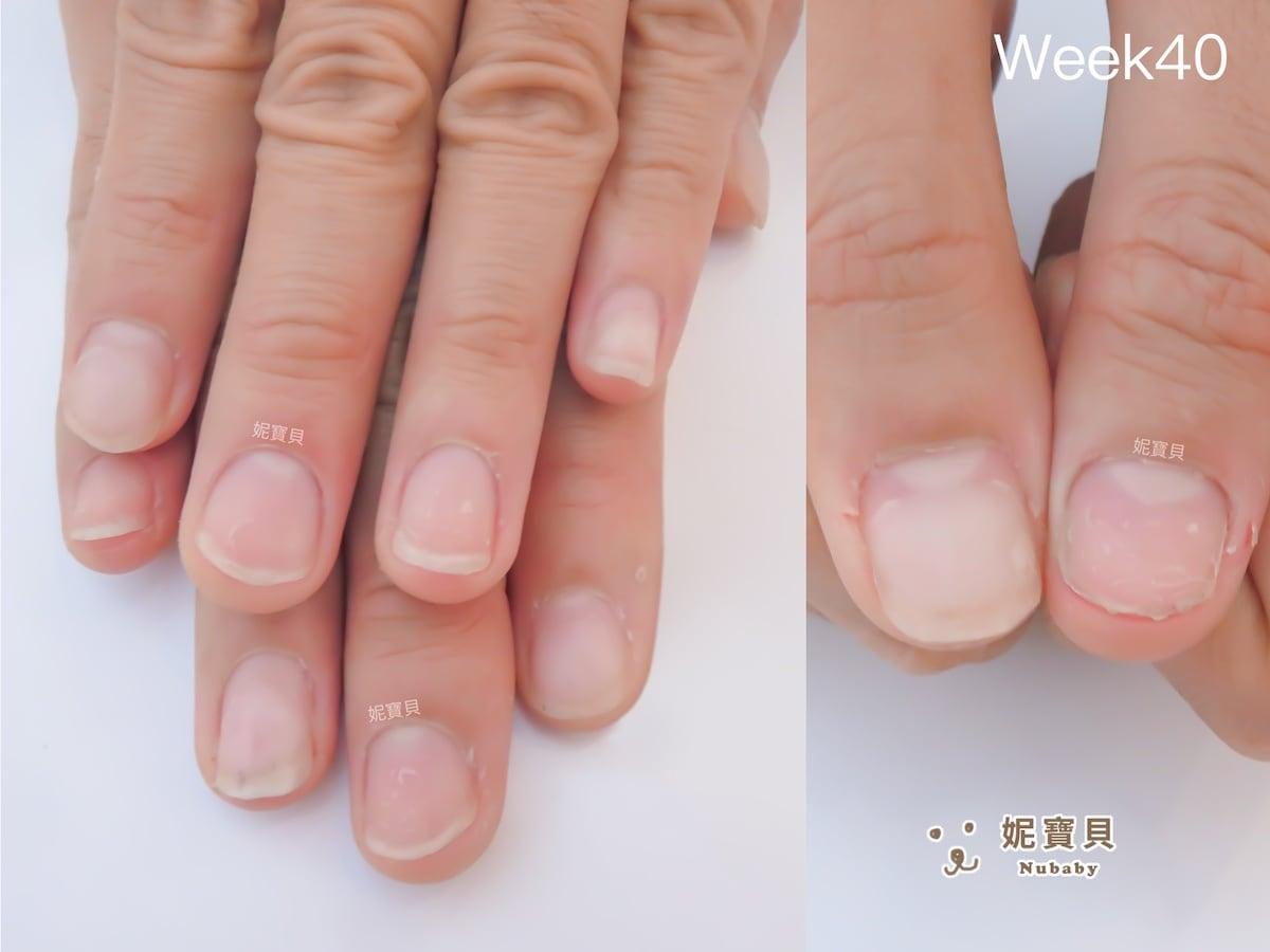 咬指甲引發問題 拳擊愛好者的甲床外露與飛甲矯正