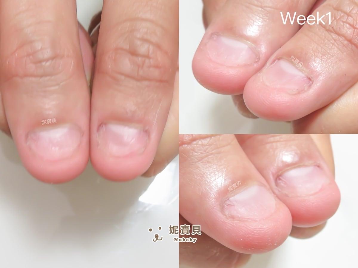 咬指甲問題 拳擊愛好者的甲床外露與飛甲矯正