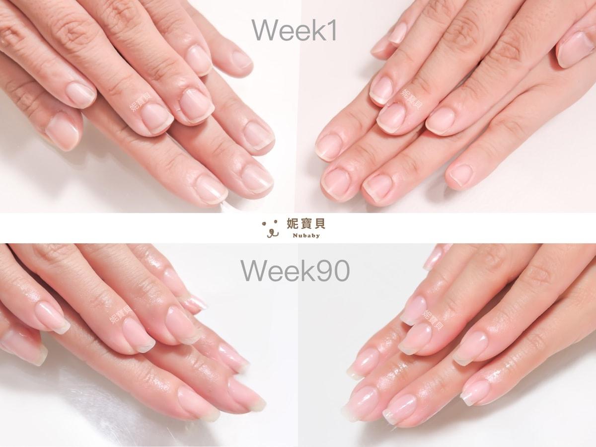 指甲保養 很重要 愛摳皮甲床短 矯正成功靠這個