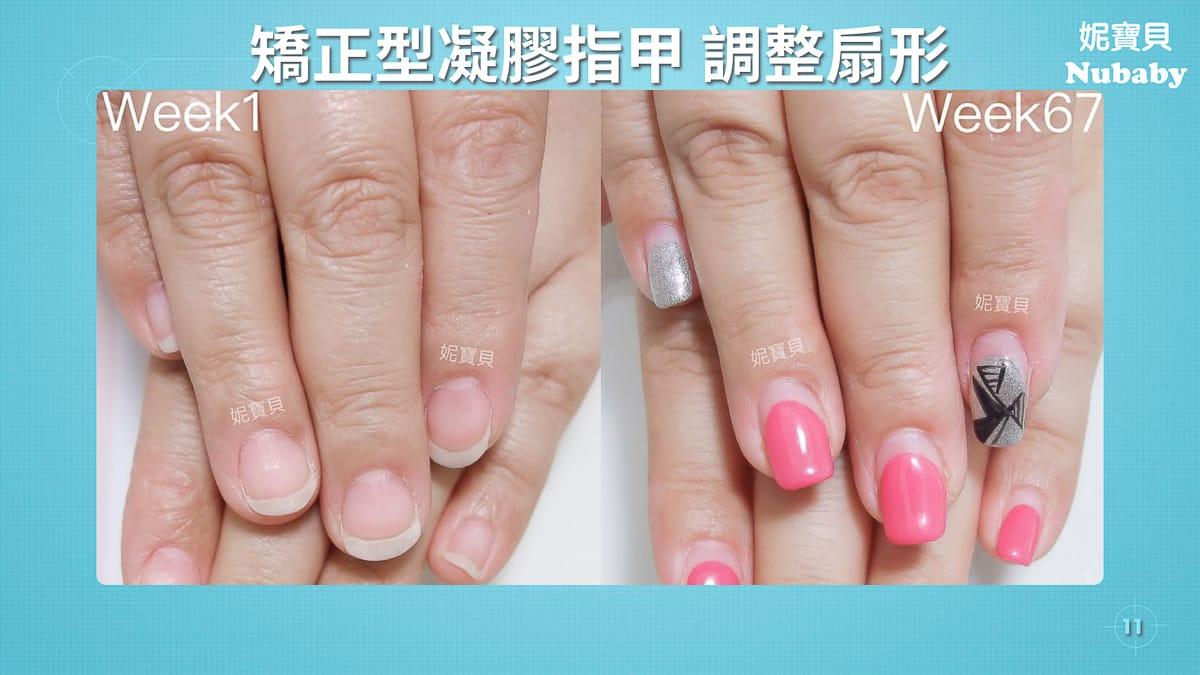 咬指甲的後遺症-能不能只靠指緣油和萬用膏呢?