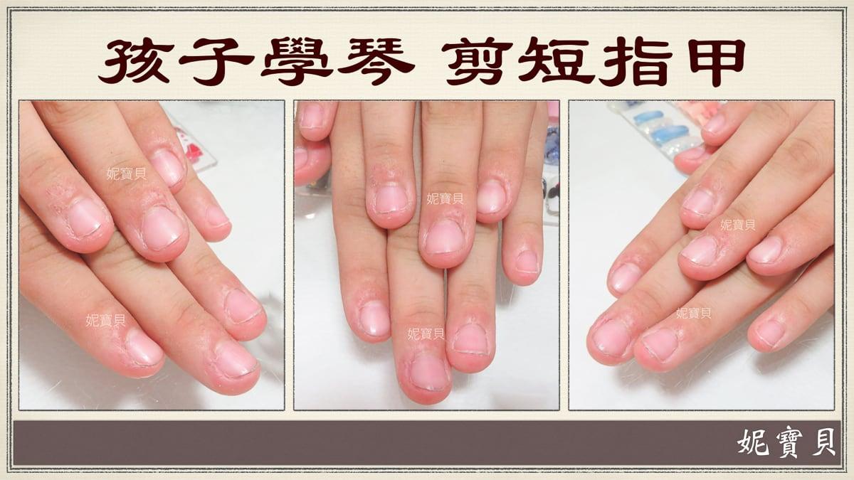 彈鋼琴的指甲矯正-一般彈琴一邊咬指甲怎麼辦