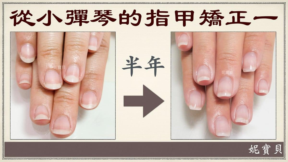 從小彈琴做矯正的例子1-一般彈琴一邊咬指甲怎麼辦
