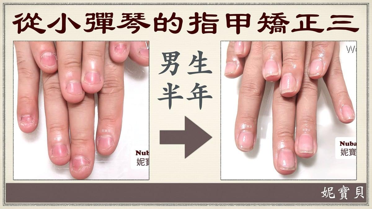 小彈琴做矯正的例子3-男生-一般彈琴一邊咬指甲怎麼辦