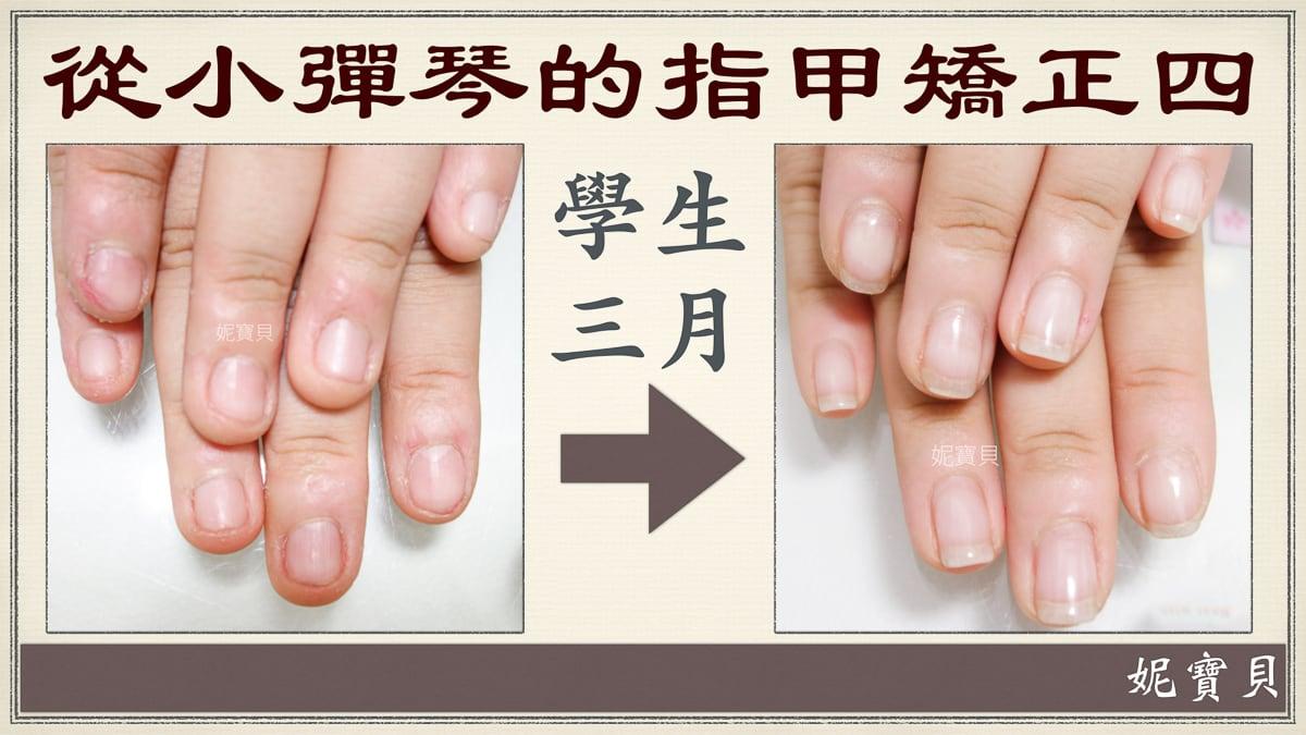 從小彈琴做矯正的例子4-學生-一般彈琴一邊咬指甲怎麼辦