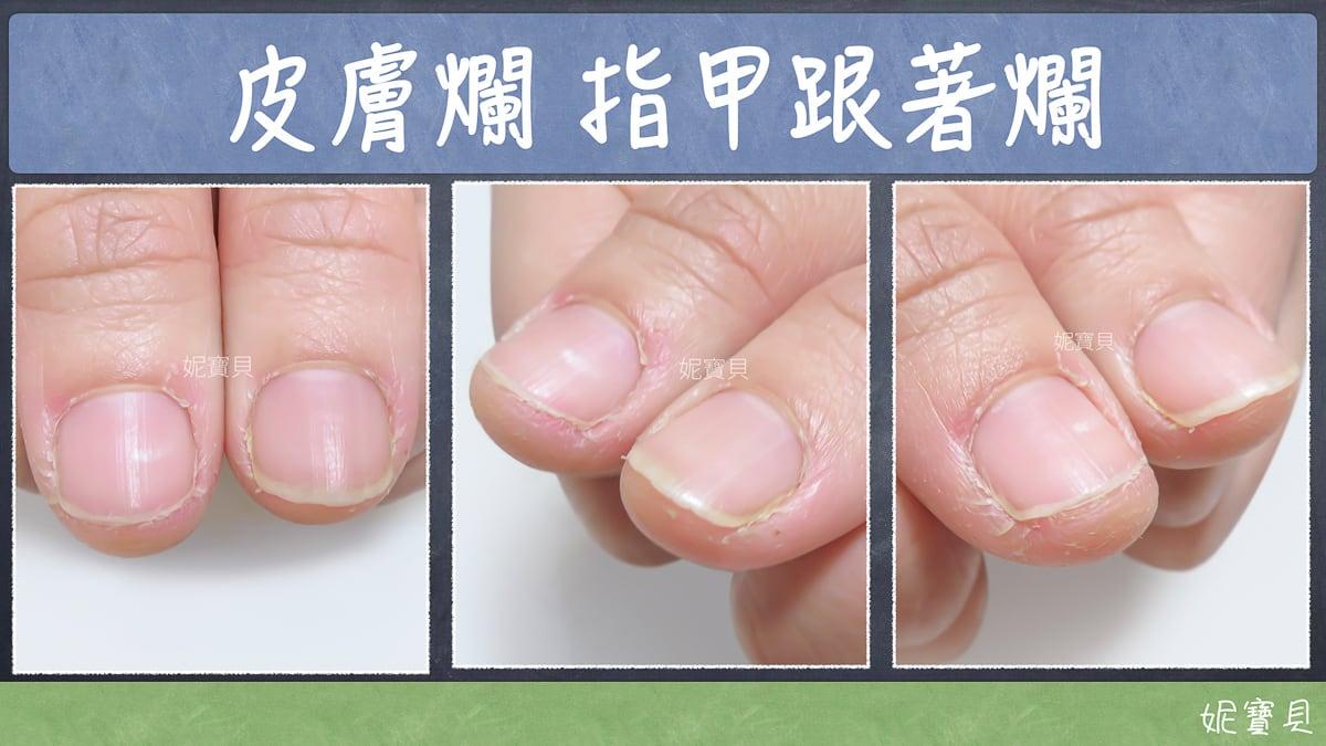 皮膚爛 指甲跟著爛,那該怎麼辦?停止破壞指甲立刻該做
