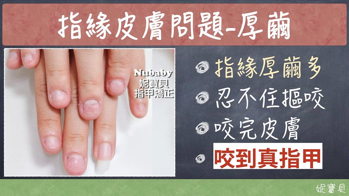 硬繭的影響,那該怎麼辦?停止破壞指甲立刻該做