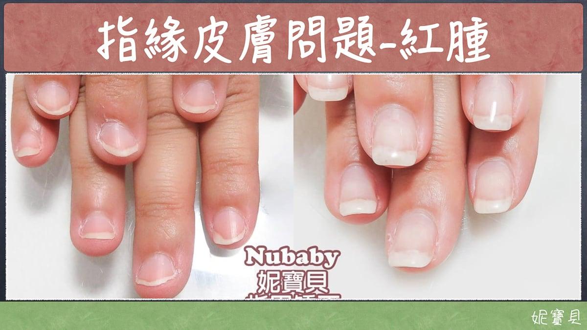 問題指甲矯正-暫時沒辦法,那該怎麼辦?停止破壞指甲立刻該做