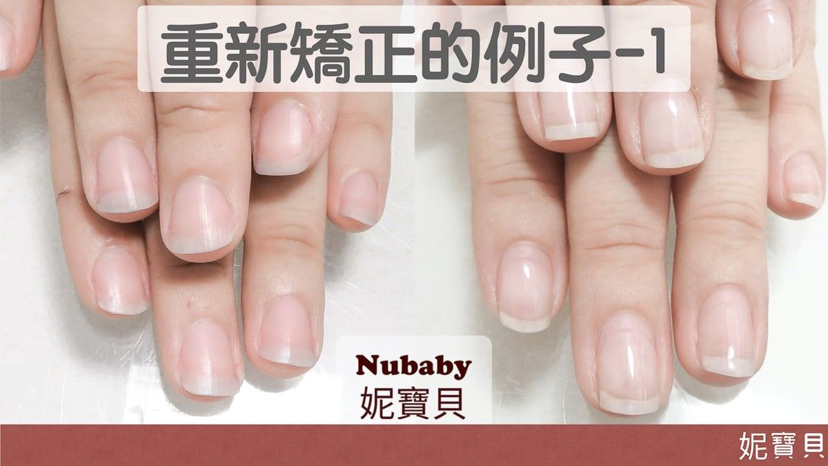 重新矯正的例子1-該怎樣避免指甲再次變差?