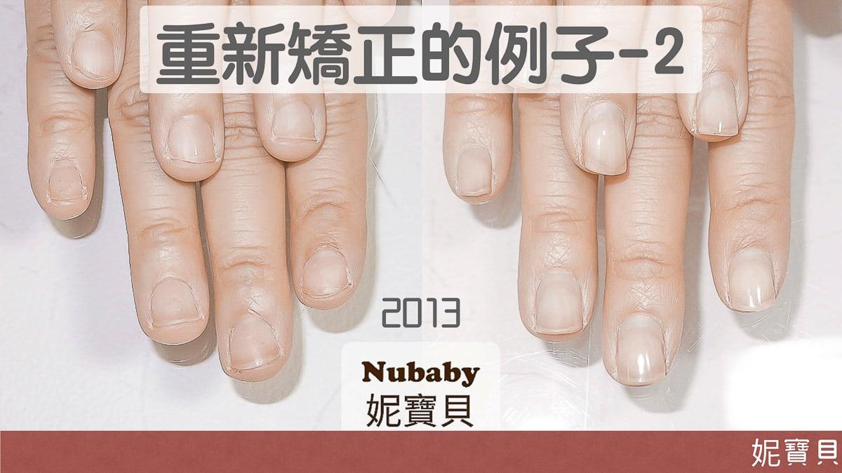 重新矯正的例子2-該怎樣避免指甲再次變差?