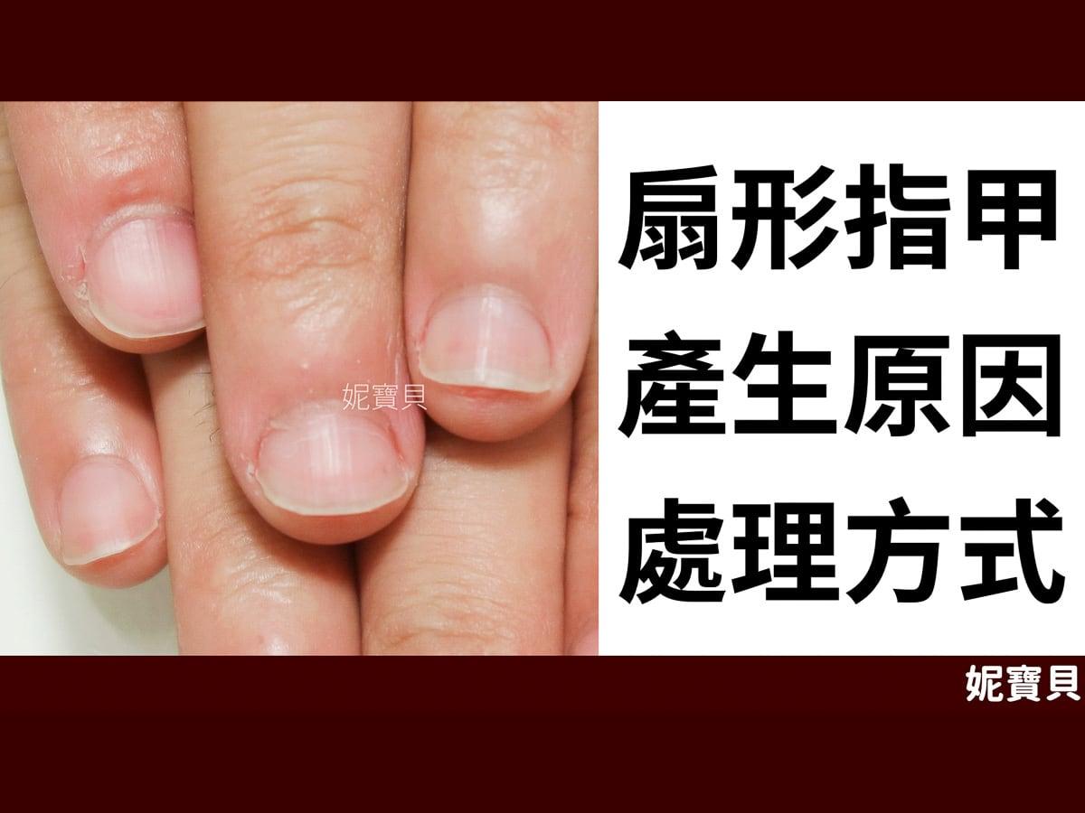 扇形指甲 扁平甲型 成因與處理方式