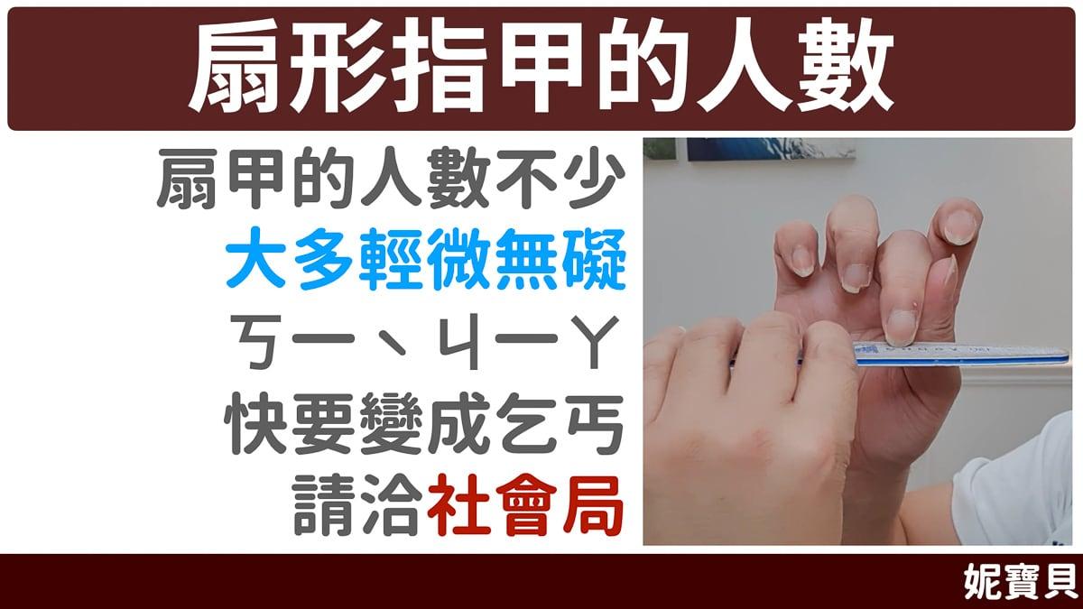 扇形指甲 的人並不少 成因與處理方式