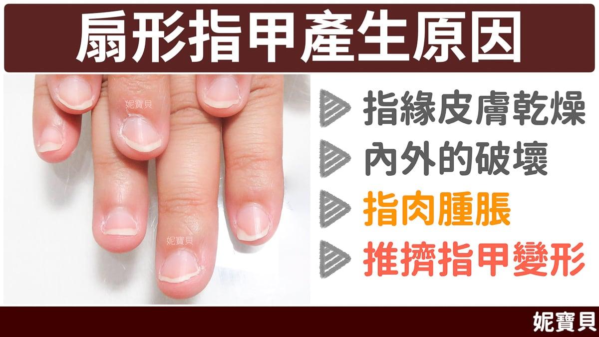 扇形指甲 產生的原因成因與處理方式