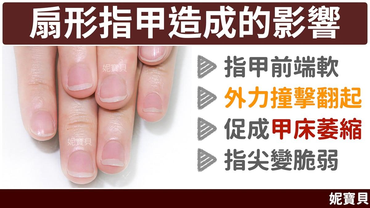 扇形指甲 造成的影響 成因與處理方式