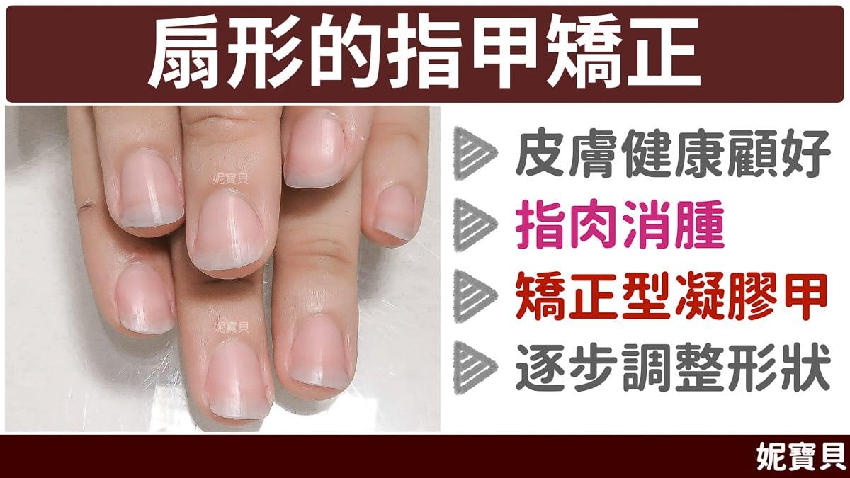 扇形指甲 的矯正 成因與處理方式