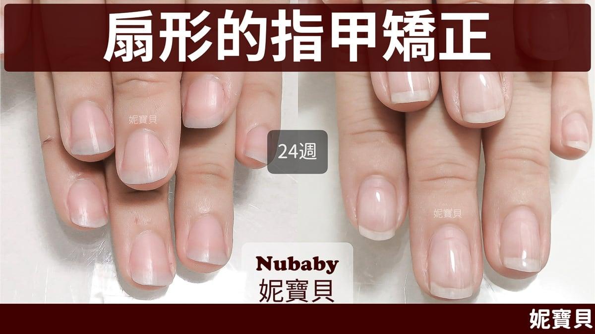扇形指甲 的矯正成因與處理方式