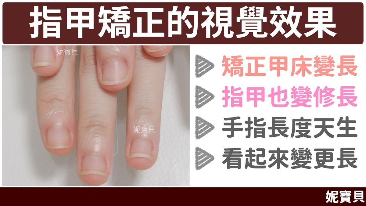 指甲矯正 的視覺效果 成因與處理方式