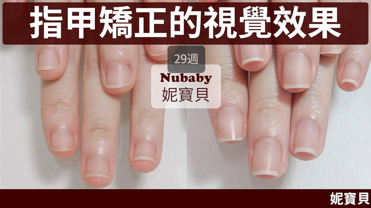 扇形指甲&扁平甲型 成因與處理方式