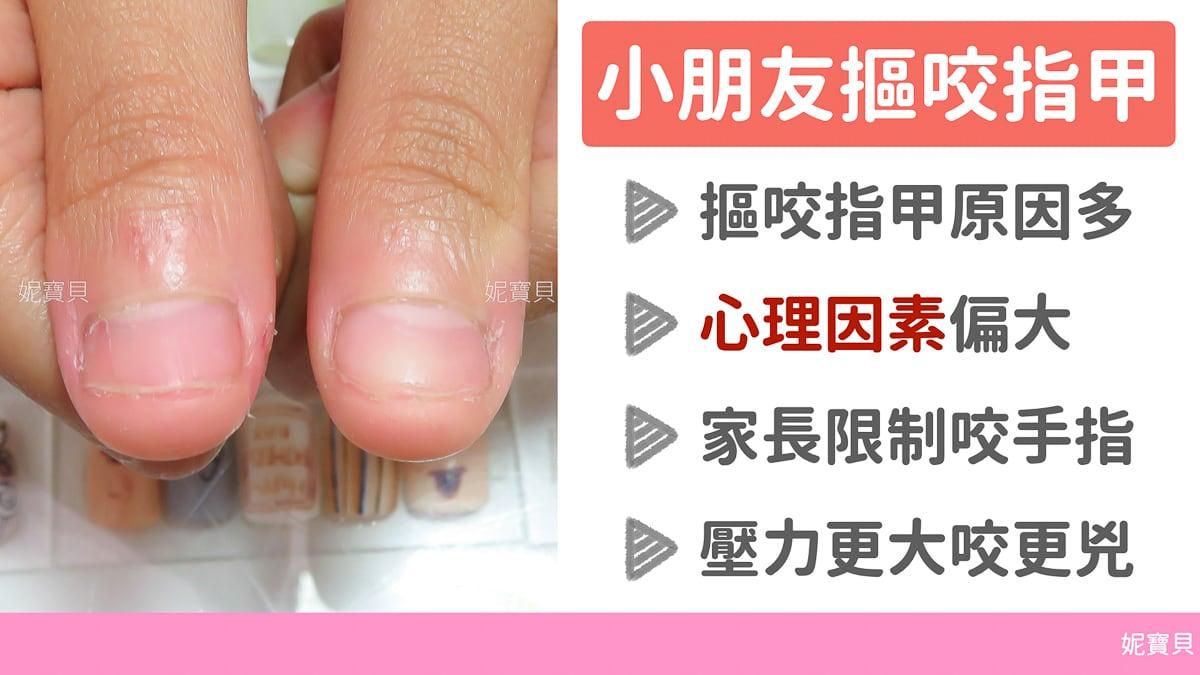 小朋友咬指甲 用保濕處理處理孩子破壞手指