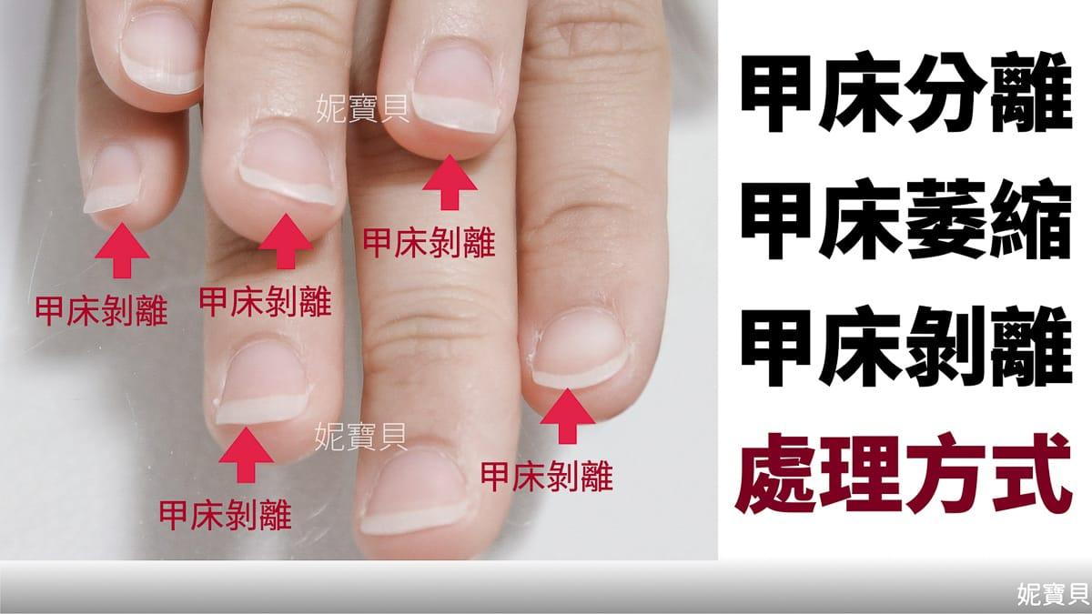 甲床分離(萎縮 剝離)產生的原因與處理
