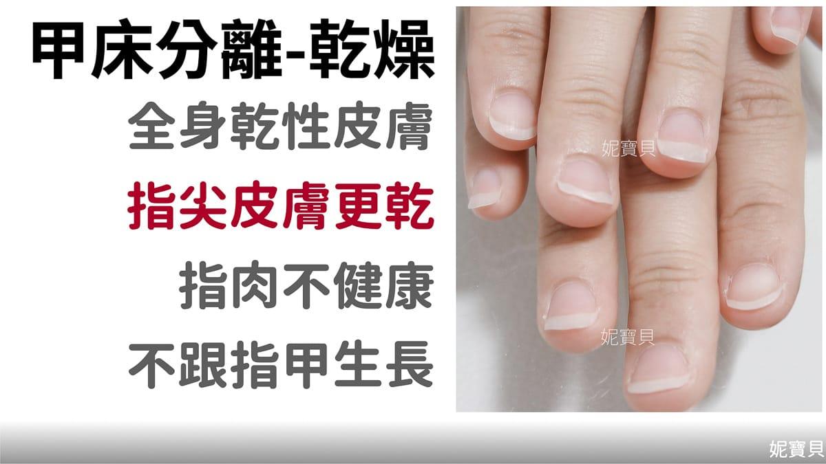 乾燥而造成甲床分離 甲床萎縮 剝離)產生的原因與處理